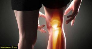 درمان قفل شدن زانو با طب سنتی