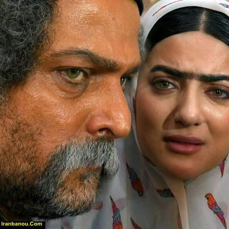 هلیا امامی قبل از عمل زیبایی